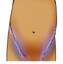 درد رباط گرد در دوران بارداری: علل و درمان