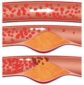 کلسترول خوب در برابر کلسترول بد خون