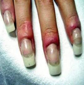 آیا ناخن های کاشته شده به ناخن های طبیعی آسیب می زنند؟
