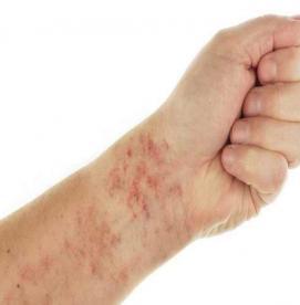 پورپورای ترومبوتیک ایدیوپاتیک یا ITP، یک اختلال خونی