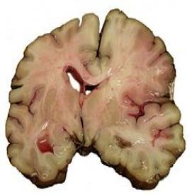 سکته مغزی،عوامل ایجاد کننده، علائم و درمان