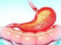 درمان خانگی التهاب معده یا گاستریت